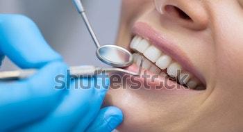 dentist-examining-patients-teeth-600w-364820015-2